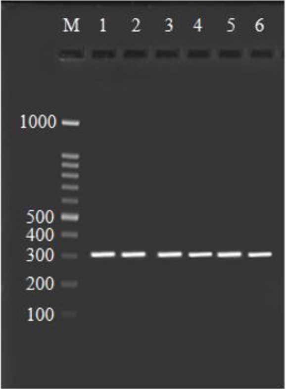 Agarose gel stained with ethidium bromide, PCR products of COX-2 gene by using the COX-2-765G > C (rs20417) primer. Line 1–6 is 309 bp fragments, Line M is 100 bp DNA ladder
