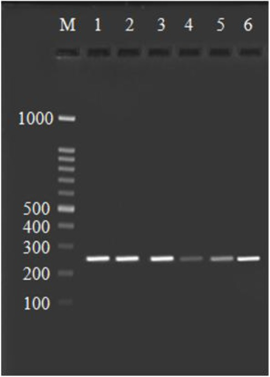 Agarose gel stained with ethidium bromide, <t>PCR</t> products of COX-2 gene by using the COX21195A→G (rs689466) primer. Line 1–6 is 273 bp fragments, Line M is 100 bp <t>DNA</t> ladder