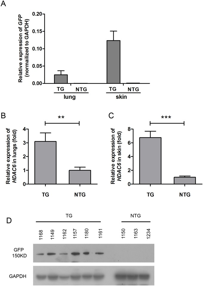 Determination of HDAC6 expression in F1 generation transgenic pigs. (A) qRT-PCR analysis of exogenous HDAC6 expression in the lungs and skin of F1 TG (n = 9) and sibling NTG pigs (lung, n = 10; skin, n = 6) using the Q-GFP-F/R primer pair. The data are presented as the mean ± SD. The relative expression of GFP was calculated using the 2 -Δct method. (B) qRT-PCR analysis of HDAC6 expression in lungs of F1 TG (n = 9) and sibling NTG pigs (n = 10) using the Q-HDAC6-F/R primer pair. (C) qRT-PCR analysis of HDAC6 expression in the skin of F1 TG (n = 9) and sibling NTG pigs (n = 6) using the Q-HDAC6-F/R primer pair. The data are presented as the mean±SD. The mRNA relative expression of total HDAC6 was calculated using the 2 -ΔΔct method (RNA from NTG pigs was used as the reference sample). GAPDH was used as an internal qRT-PCR control. Statistical significance was analyzed using a t-test. ***, P