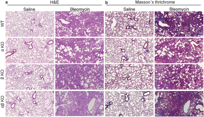 Lack of meprins do not influence bleomycin induced phenotype. ( a ) H E and ( b ) Masson's Trichrome staining of lung section from wt littermates, meprin α, meprin β, meprin αβ KO mice after 14 days saline or bleomycin treatment. Scale bars show 200 μm.