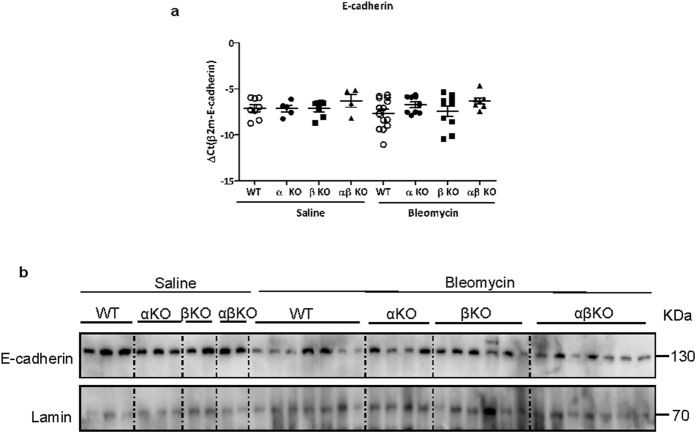 Absence of meprins does not prevent E-cadherin loss in bleomycin treatment mice. ( a ) mRNA and ( b ) protein level of E-cadherin in lung homogenate from meprin α, meprin β meprin αβ KO and wt littermates mice after 14 days saline or bleomycin treatment (*p