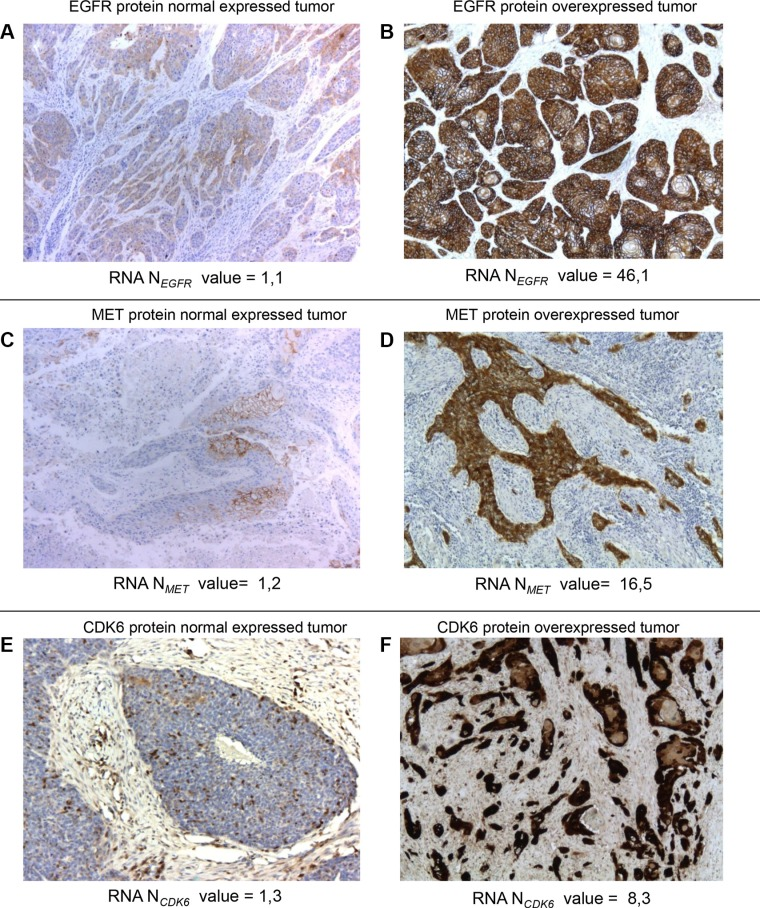 Normal and overexpressed tumors at the protein and mRNA levels for EGFR , MET and CDK6 . Immunohistochemical staining for EGFR ( A , B ), MET ( C , D ) and CDK6 ( E , F ) proteins in HNSCC tumors. Examples of three tumors with EGFR (A), MET (C) and CDK6 (E) normal mRNA-expressions and three tumors with EGFR (B), MET (D) and CDK6 (F) mRNA-overexpressions. Intense EGFR (B), MET (D) and CDK6 (F) immunoreactivity was found in tumor epithelial cells from the EGFR, MET, CK6 mRNA-overexpressing tumors but not in cells from the tumor without EGFR, MET, CK6 mRNA-overexpression (A, C, E) (original magnification × 50).