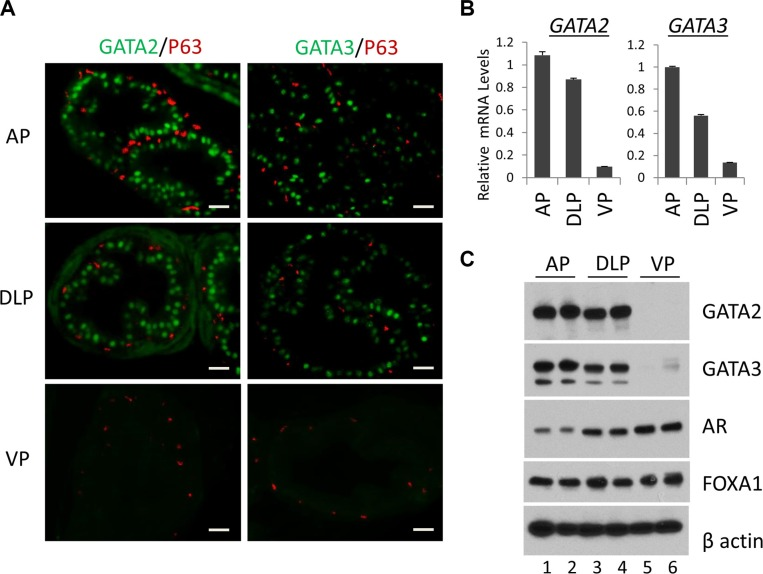 Expression of the GATA and other key transcription factors in WT murine prostate ( A ) Co-immunofluorescence staining of GATA2 (green), GATA3 (green) and p63 (red) in prostatic lobes. The scale bars, 20 μm in all panels. ( B ) mRNA levels of GATA2 and GATA3 in three prostatic lobes as determined by real-time qPCR. Data are average ± SE ( n = 3). ( C ) Protein levels of GATA2, GATA3, AR, and FoxA1 in prostatic lobes as determined by Western blot analysis. Because Western samples for these four transcription factors were from the same batch of prostate tissue lysates, one beta-Actin Western result was shown here to indicate an equal sample loading.