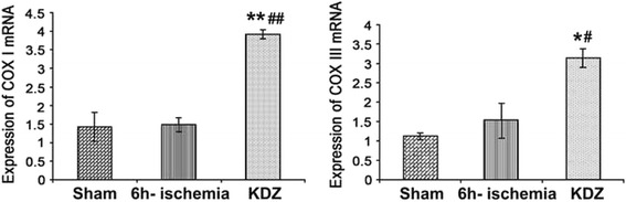 Effects of KDZ injection on the expressions of mitochondrial COX I and COX III mRNA in myocardial tissues of rat models of focal cerebral ischemia. Expressions of mitochondrial COX I and COX III mRNA were determined by RT-PCR. GAPDH was used as control. Data are shown as mean ± SEM ( n = 6/group). * P