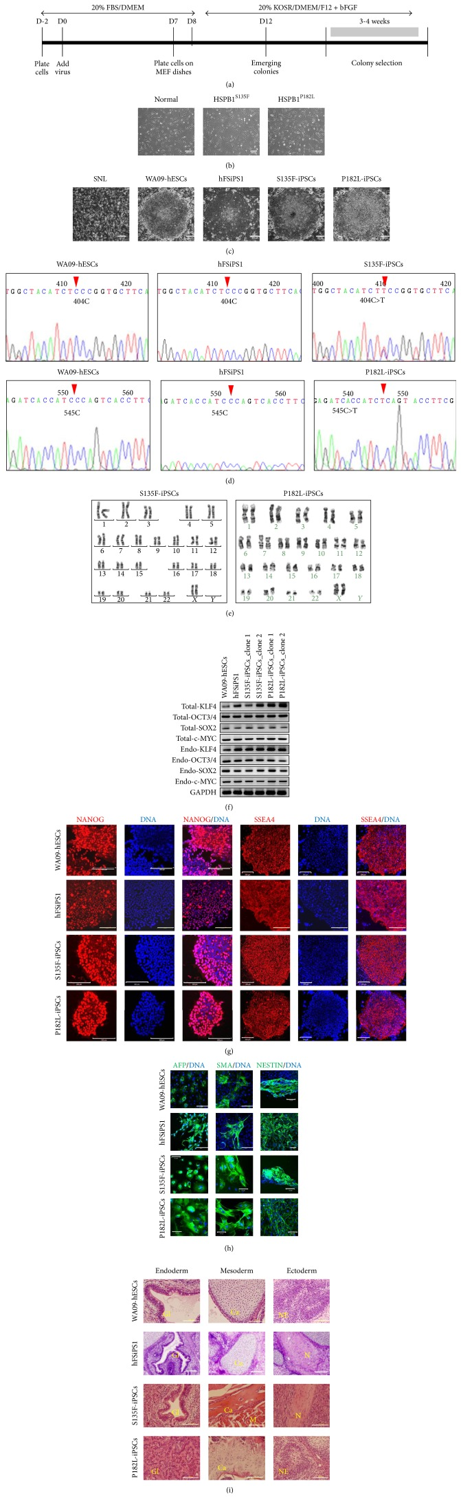 Generation of CMT2F patient and dHMN2B patient-derived iPSCs. (a) Experimental timeline for iPSC generation. KOSR, KnockOut™ serum replacement; bFGF, basic fibroblast growth factor. (b) Morphology of fibroblasts from normal individual and patients (original magnification, 50x). Scale bars: 200 μ m. (c) iPSC colonies showed ESC-like morphology, such as a flat cobblestone-like appearance with individual cells having a high nucleus-to-cytoplasm ratio (original magnification, 50x). Scale bars: 200 μ m. (d) CMT2F-iPSCs and dHMN2B-iPSCs had preserved point mutation sites in the HSPB1 gene, verified by sequencing of RT-PCR products. (e) CMT2F-iPSCs and dHMN2B-iPSCs maintained normal karyotype. (f) Expression of total and endogenous Klf4, Oct3/4, Sox2 , and c-Myc in CMT2F-iPSCs and dHMN2B-iPSCs was verified by RT-PCR. Two clones from each of the patients-derived iPSCs were tested (clone 1 and clone 2). (g) ESCs and iPSCs expressed stem cell markers such as NANOG (in the nucleus; original magnification, 200x) and <t>SSEA4</t> (in the cytoplasm; original magnification, 100x). Scale bars: 200 μ m. (h) EB-mediated in vitro spontaneous differentiation of ESCs and iPSCs resulted in the expression of three-germ-layer markers such as AFP (endoderm), SMA (mesoderm), and nestin (ectoderm; original magnification, 200x). Scale bars: 100 μ m. (i) ESCs and iPSCs showed in vivo pluripotency by forming teratomas 8 weeks after subcutaneous injection into NOD/SCID mice. Teratomas consisted of various three-germ-layer tissues including columnar gland epithelial cells with secretions [Gl] for endodermal tissue, muscle [M] and cartilage with calcification [Ca] for mesodermal tissue, and neuroectodermal tissue [NE] and nerve axonal bundle [N] for ectodermal tissue (original magnification, 400x). Scale bars: 100 μ m.