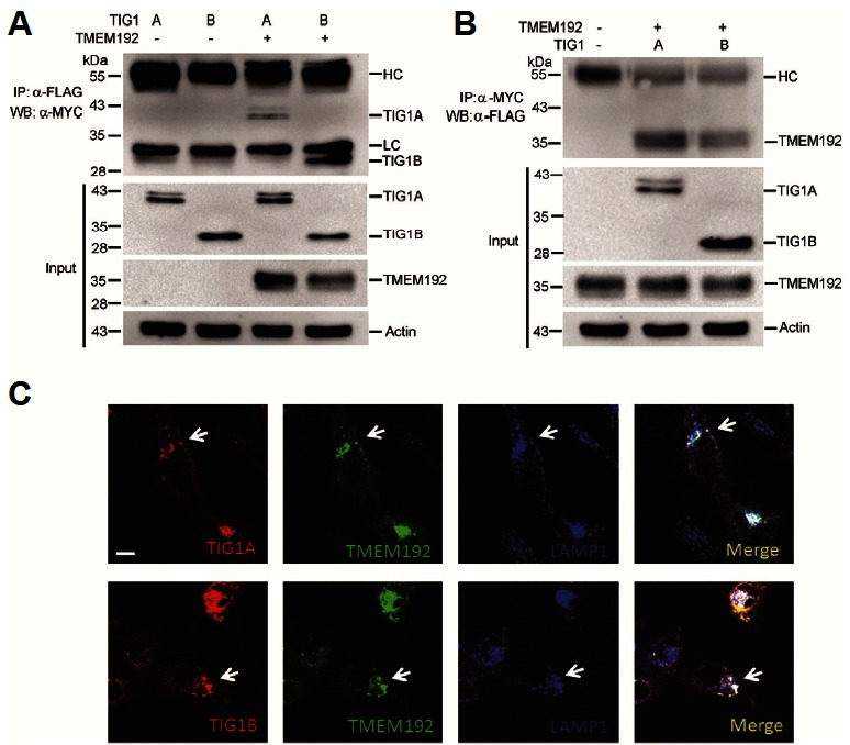 TIG1 interacts and co-localizes with TMEM192. HtTA cells plated in a 10-cm dish were transfected with 3 μg of TMEM192-Flag expression vector along with the TIG1A-myc or TIG1B-myc expression vector for 24 h. Cell lysates were prepared, and the interaction between TIG1 and TMEM192 was analyzed by immunoprecipitation followed by Western blot analysis. Immunoprecipitates were resolved by SDS-PAGE and immunoblotted using the anti-MYC antibody (A) or anti- FLAG antibody (B). Total cellular extracts from HtTA cells were subjected to Western blot analysis for TIG1, TMEM192, and actin. HtTA cells were co-transfected with EGFP-TMEM192 along with the TIG1A-myc or TIG1B-myc expression vectors for 18 h. The cells were fixed and then incubated with anti-MYC and anti-LAMP1 (lysosomal marker) antibodies followed by Alexa Fluor 633 goat anti-mouse IgG and Alexa Fluor 405 goat anti-rabbit IgG antibodies. The cells were then analyzed with a laser scanning confocal microscope. Scale bar: 10 μm. The localization of TIG1 (red), TMEM192 (green), and lysosomes (blue) was analyzed using a laser scanning confocal microscope. Arrows indicate co-localization of TIG1 and TMEM192 (C). Scale bar, 10 μm.