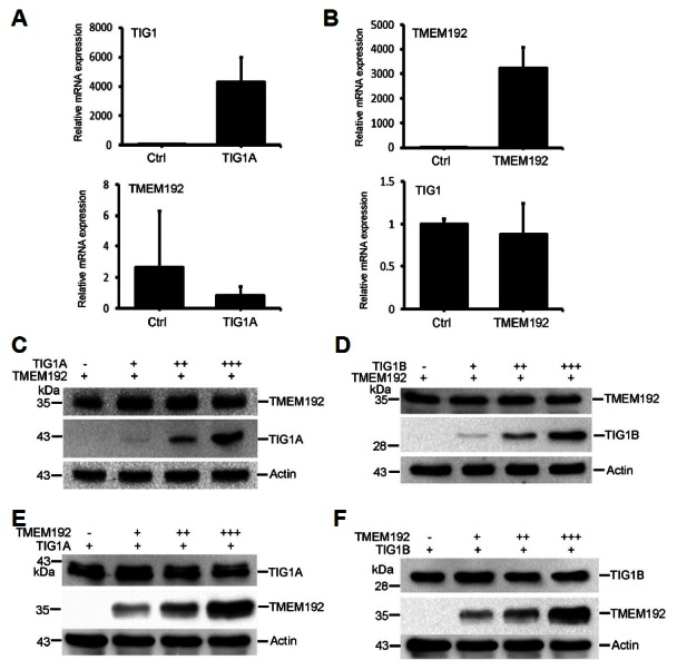Effects of TIG1 on expression of TMEM192 in HtTA cells. HtTA cells plated in 6-well dishes were transfected with 0.5 μg of TIG1A-myc (A) or TMEM192-flag (B) expression vector for 24 h. Total RNA was extracted and relative levels of the indicated mRNAs were measured by real-time RT-PCR. HtTA cells plated in a 6-cm dish were transfected with 0.5 μg of TMEM192-Flag expression vector along with 0.5–1.5 μg of TIG1A-myc (C) or TIG1B-myc (D) expression vector for 12 h. Alternatively, cells were transfected with 0.5–1.5 μg of TMEM192-Flag expression vector along with 0.5 μg of TIG1A-myc (E) or TIG1B-myc (F) expression vector for 12 h. Cell lysates were prepared, and the levels of TIG1A, TIG1B, and actin were determined by immunoblotting.