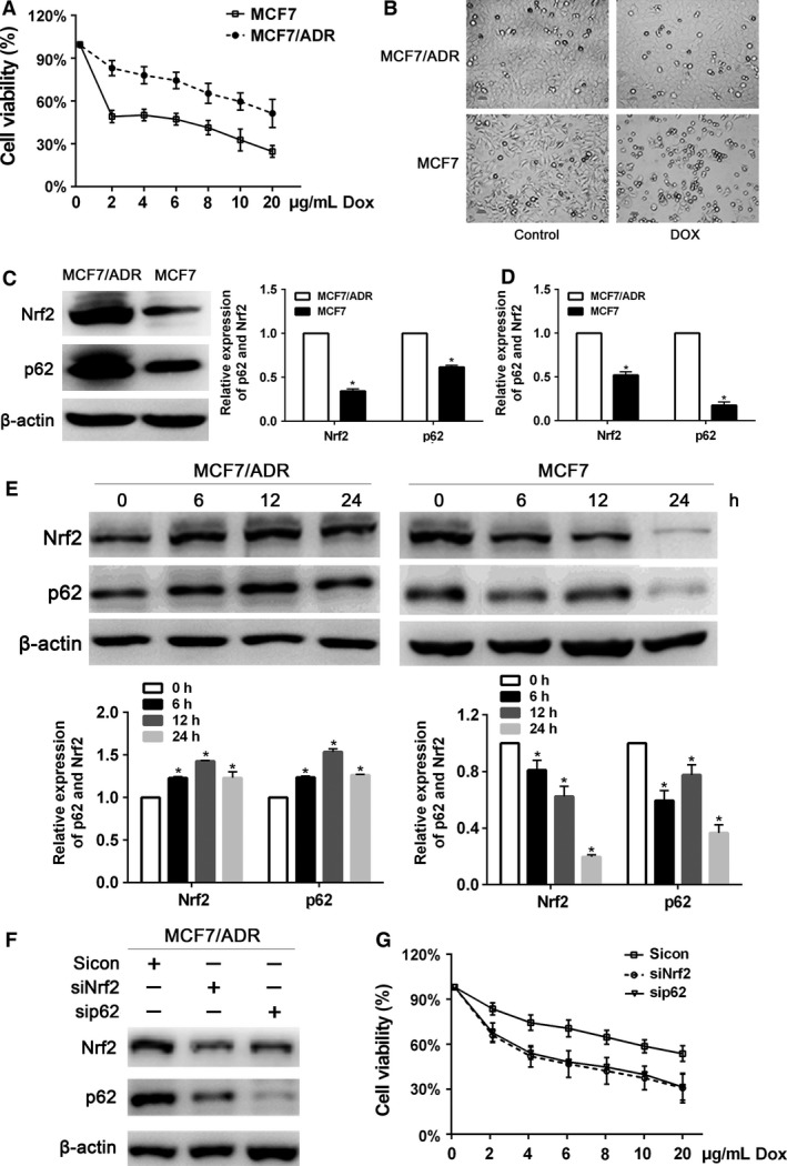 Nrf2 and p62 overexpressed in MCF ‐7/ ADR breast cancer cells. (A) The inhibitory effect of doxorubicin on MCF ‐7 and MCF ‐7/ ADR cells proliferation. Cells were treated with various concentrations of doxorubicin for 24 h, and then cell viability was determined by the CCK 8 assay. (B) MCF ‐7 and MCF ‐7/ ADR cells treated with PBS or doxorubicin (3 μ g/mL) for 24 h were visualized by light microscopy. (C) The protein levels of Nrf2 and p62 were assessed by western blot in MCF ‐7 and MCF ‐7/ ADR cells. (D) The mRNA expression of Nrf2 and p62 was assessed by RT ‐ qPCR in MCF ‐7 and MCF ‐7/ ADR cells. (E) Western blot analysis for the protein levels of Nrf2 and p62 in MCF ‐7 and MCF ‐7/ ADR cells treated with 3 μ g/mL doxorubicin. (F) MCF ‐7/ ADR cells were performed infected with Nrf2 sh RNA or p62 sh RNA lentivirus. Protein levels of Nrf2 and p62 were determined by western blot. (G) MCF ‐7/ ADR cells infected with Nrf2 sh RNA or p62 sh RNA lentivirus were treated with the indicated doses of doxorubicin for 24 h, followed by the CCK 8 assay. Data are presented as mean ± SD , n = 3, * P