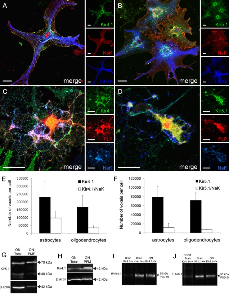 Plasmalemmal expression of Kir4.1 and Kir5.1 subunit in optic nerve glia. Immunolocalization of Kir4.1 and Kir5.1 with the membrane bound Na–K-ATPase α1 subunit in optic nerve explants of astrocytes identified by GFAP ( A , B ) and oligodendrocytes identified by PLP-DsRed ( C , D ). Scale bars 20 μm. Quantification in astrocytes and oligodendrocytes of total number of voxels immunopositive for Kir4.1 and Kir5.1, compared to voxels that were identified as colocalized for Kir4.1/Na–K-ATPase ( E ) and Kir5.1/Na–K-ATPase ( F ); data are mean ± SEM, n = 13 cells for each analysis. Western blot analysis of Kir5.1 ( G ) and Kir4.1 ( H ) in total optic nerve lysate and plasma membrane fraction. Co-immunoprecipitation of Kir4.1 ( I ) and Kir5.1 ( J ) with PSD95, in total brain and optic nerve (ON) lysate; negative controls were Kir4.1 knock-out mice (−/−) for Kir4.1 and preincubation with the blocking peptide for Kir5.1