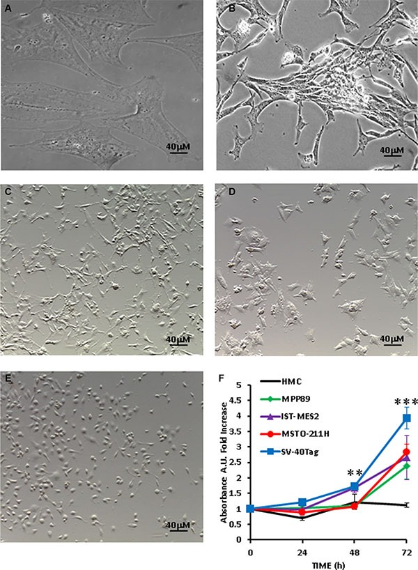 Growth rate and morphology of MPM cells ( A ) HMCs; ( B ) SV40-Tag cells; ( C ) MPP89 cells; ( D ) MSTO-211H cells; ( E ) IST-MES2 cells. ( F ) Growth kinetics of HMCs and MPM cells cultured in serum-free RPMI or serum-free <t>DMEM-F12</t> (MPP89) medium for 72 h; cell number was assessed by measuring crystal violet uptake at 590 nm absorbance as described in Materials and Methods. Pictures were taken with a Leica phase contrast microscope as described in Materials and Methods.