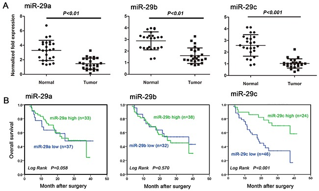 MiR-29c is an independent prognostic factor for glioma patient overcome A. miR-29a, miR-29b and miR-29c expression were downregulated in human glioma tissues examined by using <t>qRT-PCR.</t> Tumor: glioma tissues; Normal: the matched normal brain tissues. B. Kaplan-Meier survival curves for OS in relation to miR-29a, miR-29b and miR-29c expression. Cutoff values for miR-29s (high/low expression) were determined by ROC analysis by using SPSS16.0 software.