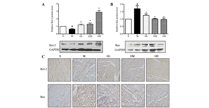 Expression of Bcl-2 and Bax in GMT-treated Sprague-Dawley rats with acute myocardial infarction. (A and B) Western Blot was used to evaluate the protein expression of Bcl-2 and Bax. (C) Immunohistochemical analysis was used to detected the expression of Bcl-2 and Bax (magnification, ×400). # P