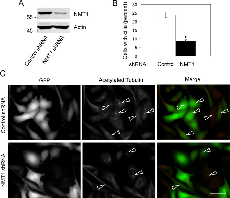 NMT1 is necessary for cilia formation in Pan02 cells ( A ) Pan02 lines expressing control non-targeting shRNA or NMT1 shRNA were cultured for 20 h and processed for detection of cilia by acetylated tubulin staining. (A) Percent of cells forming cilia was quantified in at least 250 cells per condition in three independent experiments. The graph shows average ± S.E.M. for the percent of cells forming cilia in a representative experiment out of three independent experiments. (*) p
