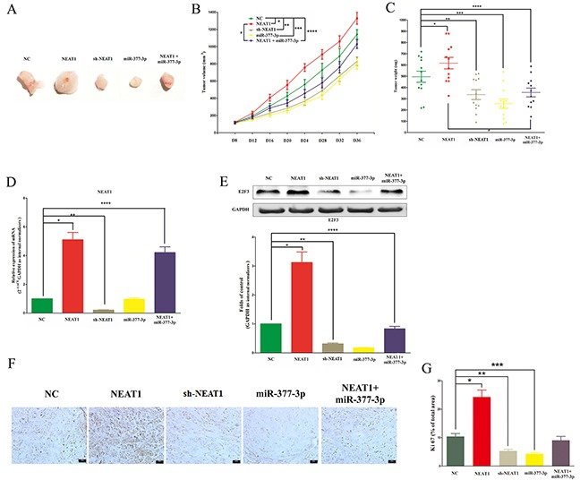 NEAT1 promotes NSCLC cell growth in vivo by inhibiting miR-377-3p/E2F3 axis A-C. Tumor size, volume, and weight of subcutaneous implantation models of A549 cell are shown. D. NEAT1 expression in tumors isolated from NC, NEAT1, sh-NEAT1, miR-377-3p, and NEAT1+miR-377-3p groups. E. The protein expression of E2F3 in tumors isolated from NC, NEAT1, sh-NEAT1, miR-377-3p, and NEAT1+miR-377-3p groups. F. Immunohistochemistry of Ki67 in tumors isolated from NC, NEAT1, sh-NEAT1, miR-377-3p, and NEAT1+miR-377-3p groups. G. Statistics of Ki 67 IHC. Assays were performed in triplicate. * P