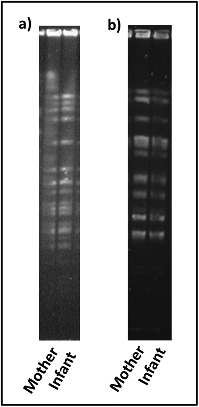 Pulse-field gel electrophoresis patterns of ( a ) XbaI-digested genomic DNA of B. breve isolates and ( b ) ApaI-digested genomic DNA of L. plantarum isolates from human milk and infant faeces. The unedited versions of these images can be found as Supplementary Figures S3 and S4 .