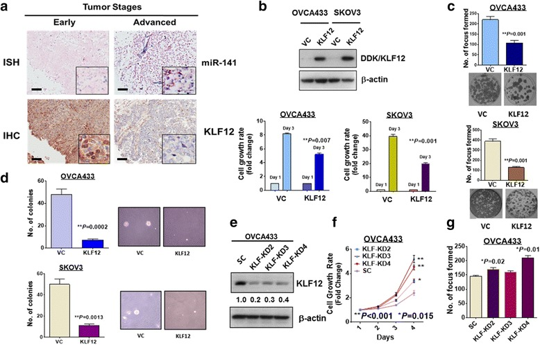 KLF12 expression inversely correlates with miR-141 and exerts inhibitory effects on ovarian cancer tumorigenicity. a Representative pictures showing miR-141 expressions examined by ISH (dark blue staining) is inversely correlated with KLF12 expression detected by IHC (brown staining) in early and advanced ovarian cancers. (Magnification × 10; scale bar, 100 μm). b Overexpression of KLF12 in two ovarian cancer cells; OVCA433 and SKOV3 ( Upper ), significantly suppresses their cell growth rates (Day 3 vs Day 1) examined by XTT cell proliferation assay when compared the cell growth rate of their empty vector controls, VC. c Focus formation assay revealed that overexpression of KLF12 significantly inhibit the number of foci in OVCA433 and SKOV3 cultured in low serum medium for 14 days. d The soft agar assay showed that overexpression of KLF12 remarkably reduce the number and size of colonies formed in soft agar in OVCA433 and SKOV3 cells as compared with their empty vector controls. The above assays represent the error bars with mean ± SD of at least 3 independent experiments. e Western blot analysis revealed that three KLF12 stable clones were obtained from transfection of shRNAi of KLF12 in OVCA433. SC represents scrambled control. These results were obtained from at least three experiments. f XTT cell proliferation assay showed that there was a significant increase of cell growth rate in all three KLF12 knockdown clones as compared with the scramble control (SC). g The focus formation assay showed that there were two KLF12 knockdown clones (KD2 and KD4) had a significant increase in the number of foci