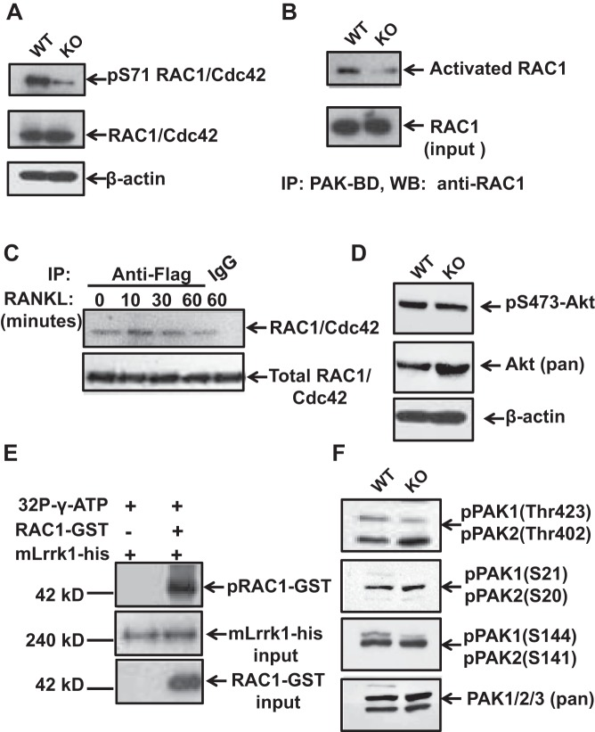 Phosphorylation and activation of small GTPase <t>RAC1/Cdc42</t> proteins are reduced in Lrrk1-deficient osteoclasts. A : Western blot analyses show reduced phosphorylation of RAC1/Cdc42 at Ser 71 . B : Pull-down assays show reduced RAC1 binding to p21 protein-activated kinase binding domain (PAK-BD). C : RAC1 interacts with hLrrk1 in Raw 264.7 cells in response to RANKL treatment in a time-dependent manner, detected by coimmunoprecipitation. D : Western blot analyses show comparable expression of Akt phosphorylation at Ser 473 in WT and Lrrk1 KO osteoclasts. E : <t>RAC1-GST</t> was phosphorylated by recombinant mLrrk1 expressed in vitro. F : Western blot analyses show reduced phosphorylation of PAK1 at Ser 144 and Thr 423 in Lrrk1 KO osteoclasts compared with WT cells.