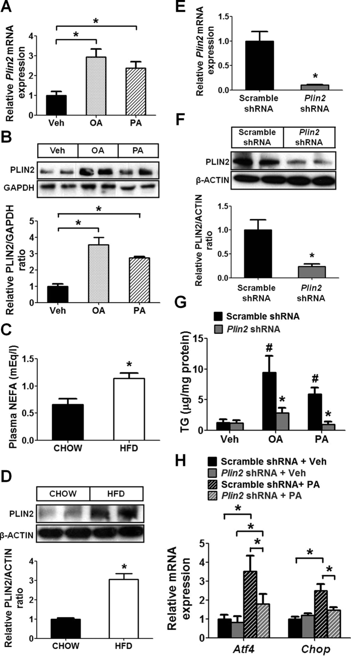 PLIN2 regulates lipid homeostasis and NEFA-induced ER stress in pancreatic β cells. ( A , B ) MIN6 cells were treated with vehicle, 0.4 mM oleic acid (OA), or 0.4 mM palmitic acid (PA) for 16 hours (n = 4–6). ( A ) Quantitative RT-PCR. ( B ) Immunoblotting and quantification. GAPDH was used as a loading control. ( C , D ) C57BL/6 mice were fed with normal chow or 40% high fat diet (HFD) for 12 weeks (n = 6). ( C ) Plasma non-esterified fatty acids (NEFA). ( D ) Immunoblotting and quantification for PLIN2 protein in pancreatic islets. β-ACTIN was used as a loading control. ( E , F ) MIN6 cells were transduced with scramble-shRNA or Plin2 -shRNA lentivirus. Plin2 -knockdown was examined by ( E ) quantitative RT-PCR (n = 4) and ( F ) immunoblotting. β-ACTIN was used as a loading control. ( G , H ) MIN6 cells were treated the same as panels (A,B) (n = 5). ( G ) Quantification of triglycerides (TG). TG levels were normalized to total protein. * p