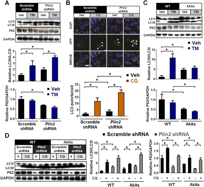 PLIN2 modulates autophagic flux in pancreatic β cells. ( A ) Immunoblotting and quantification. Control and Plin2 -knockdown MIN6 cells were treated with vehicle or 5 μg/ml tunicamycin (TM) for 6 hours. GAPDH was used as loading control. ( B ) Control and Plin2 -knockdown MIN6 cells were transfected with LC3-GFP construct and subquently treated with vehicle or 0.1 mM chloroquine (CQ) for 6 hours. Nuclei were stained with DAPI (blue). The number of LC3-GFP punctae (green dots) was quantified. Total of 50 GFP-positive cells were calculated each group. ( C ) Immunoblotting and quantification. Wild-type control and Akita β cells were treated with vehicle or 5 μg/ml TM for 6 hours. GAPDH was used as loading control. ( D ) Immunoblotting and quantification. Cells were treated with vehicle or 0.1 mM CQ for 6 hours. GAPDH was used as loading control. All immunoblotting quantification was normalized to scramble-shRNA vehicle. * p