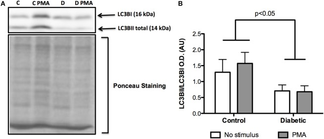 Contents of LC3BI and LC3BII in neutrophils before and after PMA stimulus . Neutrophils from diabetic rats had low cleavage of LC3BI to LC3BII when compared to the control group (A) . Graph (B) presents mean OD ± SEM of the bands from six animals per group.