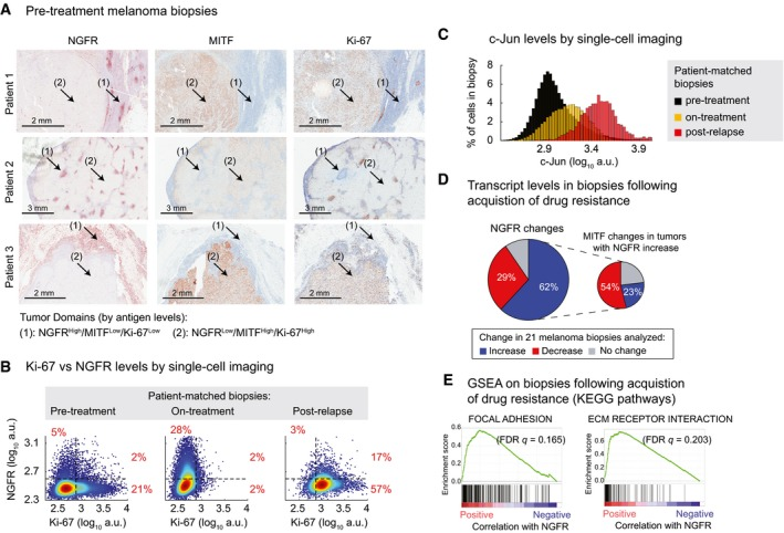 The NGFR High state is associated with resistance to MAPK inhibitors in a subset of melanoma patients Immunohistochemical analysis of vemurafenib‐naïve tumors from three melanoma patients stained for NGFR, MITF, and Ki‐67 (see Materials and Methods for patient clinical information). Covariate single‐cell analysis of Ki‐67 versus NGFR measured by immunofluorescence in pre‐treatment, on‐treatment (with dabrafenib and trametinib combination for 2 weeks), and post‐relapse tumor biopsies of a BRAF ‐mutant melanoma patient (see Materials and Methods for patient clinical information). Cell population histograms representing c‐Jun variations measured by immunofluorescence in the same patient‐matched biopsies as shown in (B). NGFR gene expression changes in 21 matched pairs of pre‐treatment and post‐resistance tumor biopsies analyzed by RNA sequencing. MITF changes are shown for tumors with a post‐resistance NGFR increase (increase = log 2 (fold‐change) > 0.5, decrease = log 2 (fold‐change)