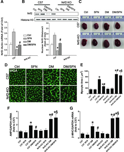 Nrf2-KO mice showed increased diabetes-induced cardiac hypertrophy and reduced SFN-induced cardiac protection. A : Nrf2 mRNA level was detected by qRT-PCR. B : Nuclear Nrf2 protein expression was detected by Western blot. C : Heart size. D and E : Cardiac tissue FITC-conjugated WGA staining and quantification of myocyte cross-sectional areas (scale bar = 25 μm). F and G : qRT-PCR analysis of hypertrophic markers ANP and β-MHC to determine mRNA expression. Data were presented as means ± SD ( n = 6). * P