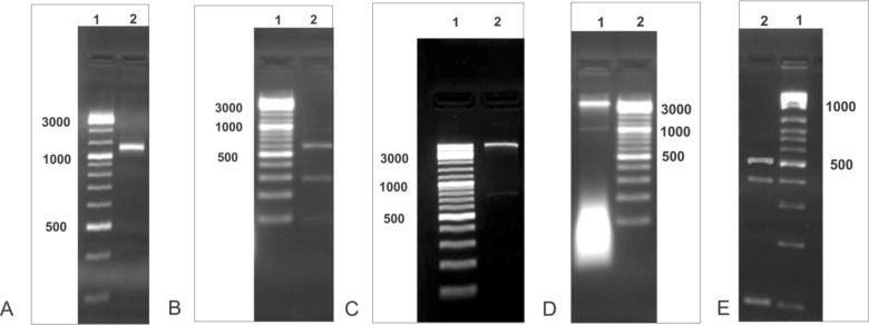 In all figures, lane 1 shows molecular size marker. (A) The sequences of flank areas on which PCR was performed by primerM13; Lane 2 shows the amplified ∼1kb band. (B) The PCR fragments which were cut with Bgl II and Kpn I enzymes. The PCR product which was divided into 3 pieces of 600, 300 and 100 bp; Lane 2 shows the 300 bp fragment. (C) The pLEXSY vector, which was cut by Fse I and Bsr gI enzymes; Lane 2 shows the ∼ 0.7 kb fragment is separated from the vector. (D) The pLEXSY vector, which was cut by Bgl II and Kpn I enzymes. Lane 2 shows the ∼1 kb fragment is separated from the vector. (E) The PCR fragments which were cut with Fse I and Bsr gI enzymes. The PCR product which was divided into 3 pieces of 500, 400 and 100 bp; Lane 2 shows the 500 bp fragment