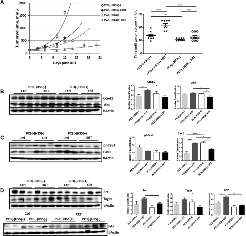 Cav1-deficient stromal fibroblasts mediated radiation resistance. ( A ) Co-implantations of PC3 tumor cells (0.5*10 6 cells each) after Cav1 silencing [shCav1, PC3(−)] in combination HS5 Cav1-silenced fibroblasts [shCav1, HS5(−)] (0.5*10 6 cells each) or control fibroblasts [shCtrl, HS5(+)] were performed by subcutaneously transplanted onto the hind limb of NMRI nude mice. One set of animals from each group received a single radiation dose of 10 Gy to the tumor after manifestation of the tumor at day 3. Tumor volume was determined at indicated time points using a sliding caliper (left diagram). Data are presented as mean ± SEM from 3 independent experiments (37 mice in total: PC3(−)HS5(+) 0 Gy n = 10; PC3(−)HS5(+) 10 Gy n = 8; PC3(−)HS5(−) 0 Gy n = 9; PC3(−)HS5(−) 10 Gy n = 10). Tumor growth and respective computed median growth delay was determined as time (days) until a four-fold tumor volume was reached (right diagram). *p