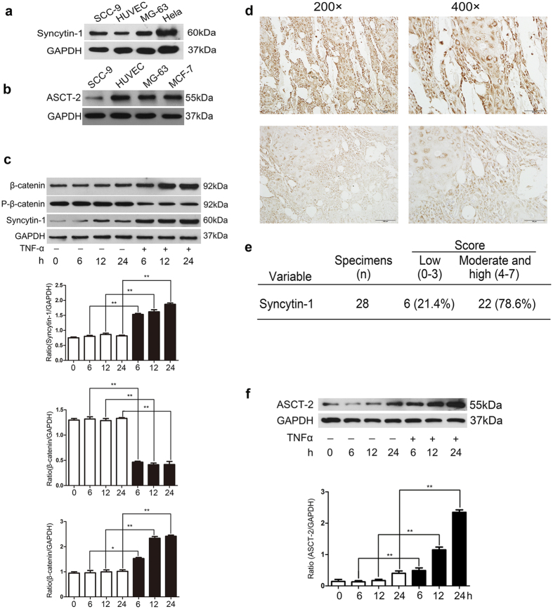 The expression of fusogenic protein syncytin-1 in SCC-9 and its receptor ASCT-2 were increased by TNF-α. ( a ) Protein level of syncytin-1 was evaluated by western blot in SCC-9, MG-63 and Hela cell line. ( b ) Protein level of ASCT-2 was evaluated by western blot in HUVEC, SCC-9, MG-63 and MCF-7 cell line. ( c , f ) The difference of syncytin-1 and ASCT-2 expression in 6, 12, and 24 h between TNF-α stimulated group and control group. The expression of syncytin-1 in SCC-9 and ASCT-2 in HUVECs were continuous and dramatic highly expressed compared to the negative control group with 10 ng/ml TNF-α treatment. The expression of phosphorylation of β-catenin (P-β-catenin) decreased sharply in TNF-α group, while the amount of β-catenin increased evidently. ( d ) Positive expression of syncytin-1 in squamous cell carcinoma, 200× and 400×, respectively. The expression of syncytin-1 mainly localized in cellular membrane and/or cytoplasm, and the level of protein expression varied in different samples. ( e ) The level of protein expression was evaluated by score 0–7. 22 out of 28 samples (78.6%) showed moderate and high expression of syncytin-1 and scored 4–7; While others (21.4%) scored 0–3.