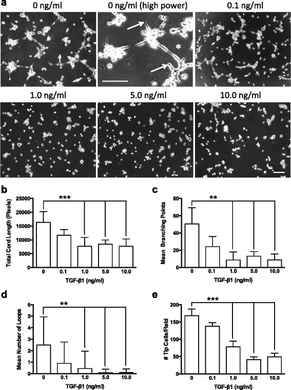 TGF-β1 induced dose-dependent reduction in endothelial cord formation. a Representative phase contrast images showing endothelial cell cord formation 8 h after plating on Matrigel™ in the presence of exogenous TGF-β1 (0–10 ng/ml). Note higher magnification control panel (0 ng/ml TGF-β1), showing tip cells ( arrows ) and loop of endothelial cords ( asterisk ). WimTube automated quantification of cord formation showed that TGF-β1 significantly inhibits total cord length ( b ), cord branching ( c ), formation of loops ( d ), and generation of tip cells ( e ). TGF-β1 doses of 1.0 ng/ml or higher significantly inhibited cord formation compared to control (0 ng/ml) or 0.1 ng/ml. ** p ≤ 0.01; **p ≤ 0.001; N = 4; Kruskal-Wallis test. Scale bars = 300 μm