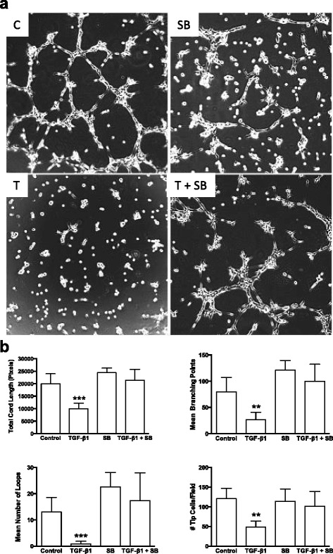 TGF-β1 induced reduction in endothelial cord formation occurs via an ALK5 related pathway. a Representative phase contrast images showing endothelial cell cord formation 8 h after plating on Matrigel™ under control conditions (C; DMSO vehicle), 5 μM SB-431542 (an ALK5 inhibitor) in DMSO (SB), 5 ng/ml exogenous TGF-β1 (T) or 5.0 ng/ml TGF-β1 plus 5 μM SB-431542 (T + SB). b WimTube automated quantification of cord formation showed SB inhibitor significantly blocked the ability of 5.0 ng/ml TGF-β1 to significantly inhibit total cord length, cord branching, formation of loops, and generation of tip cells. SB inhibitor, either alone or in combination with 5.0 ng/ml TGF-β1 was not significantly different from DMSO control. ** p ≤ 0.01; *** p ≤ 0.001; N = 4; Kruskal-Wallis test