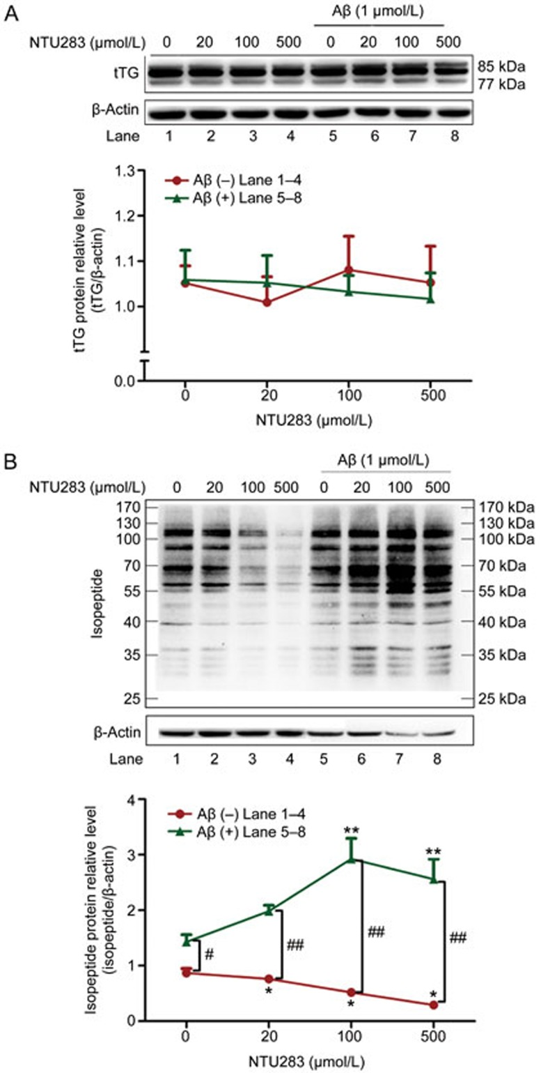 Western blotting analysis of tTG and isopeptide in NTU283- and Aβ-treated SH-SY5Y cells. Cells were seeded in 6-well plates. After 6 d of administration of RA, serum-free medium containing different concentrations of NTU283 (0, 20, 100, and 500 μmol/L) with or without 1 μmol/L Aβ was added to each well. Cells were harvested after a 24-h treatment. Western blot analysis was applied to detect tTG and isopeptide protein levels. Western blotting images were collected using a Bio-Imaging System (DNR Lumi BIS) with an ECL system and analyzed by Image-Pro Plus 6.0. (A) Representative Western blots for tTG protein levels (top) and quantitative analysis (bottom) are shown. (B) Representative Western blots for isopeptide protein levels (top) and quantitative analysis (bottom) are shown. All bands were quantified and normalized by β-actin. Statistical data are expressed as the mean±SEM from six independent experiment. * P