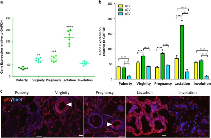 a2V expression during normal mammary development. Inguinal mammary glands from puberty, virginity, pregnancy, lactation and involution stages were harvested and analyzed for gene expression and cellular distribution of a2V. Total RNA extracted from mammary glands was subjected to quantitative real-time-PCR (qRT-PCR) analysis. ( a ) Gene expression of V-ATPase 'a2' subunit isoform during various stages of gland development compared with puberty. ( b ) Relative gene expression of V-ATPase a1, a2 and a3 subunit isoforms compared with each other at every stage. Glyceraldehyde 3-phosphate dehydrogenase (GAPDH) served as endogenous housekeeping control. Data represent mean±S.E., n =6. * P ≤0.05, ** P ≤0.01, *** P ≤0.001 and **** P ≤0.0001. ( c ) Representative z-stack images from a confocal laser-scanning microscope show expression pattern of V-ATPase 'a2' subunit isoform (a2V in red). Nucleus was stained with DAPI (diamidino-2-phenylindole; blue). Scale bars: 20 μ m