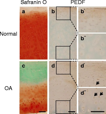 PEDF expression is elevated in human osteoarthritis (OA) cartilage specimens. Normal samples were obtained from the National Disease Research Interchange and OA samples were obtained from patients undergoing total knee replacement surgery. a Normal sample stained with Safranin O and counterstained with Hematoxylin and Fast Green. Mankin score = 1. b Immunohistochemistry (IHC) analysis on a normal cartilage sample using a mouse anti-PEDF antibody and counterstained with Methyl Green. Magnified superficial (b') and deeper (b'') zones are shown from insets. c OA sample stained with Safranin O and counterstained with Hematoxylin and Fast Green. Mankin score = 5. d IHC analysis on an OA sample using a mouse anti-PEDF antibody and counterstained with Methyl Green. Magnified superficial (d') and deeper (d'') zones are shown from insets. Arrows indicate positive PEDF staining. A negative control using a biotinylated horse anti-mouse IgG secondary antibody alone is shown in the Additional file 2 : Figure S1. Scale bar = 200 μm