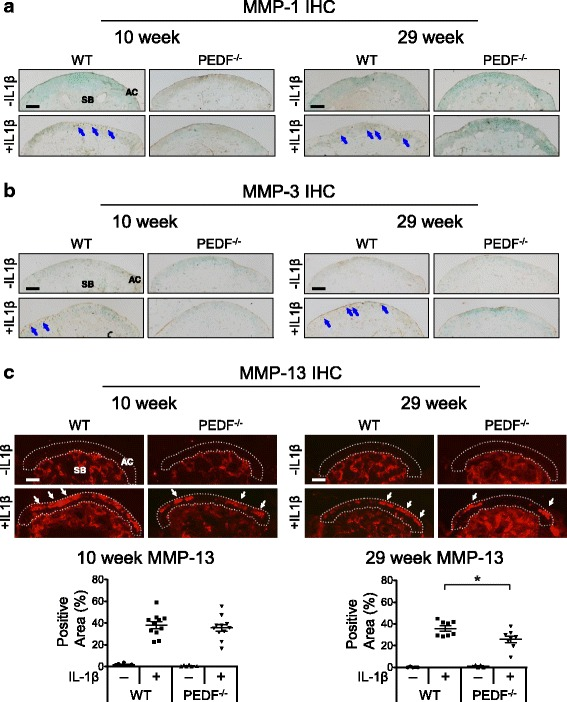 PEDF-deficiency protects against IL-1β-induced MMP-1, MMP-3 and MMP-13 protein production in metatarsal bone cultures. Metatarsal bones from 10 and 29 week old wild type or PEDF-deficient mice were harvested and cultured in the presence or absence of 10 ng/mL IL-1β for 7 days. Cryosectioned samples were analyzed for MMP protein levels by immunohistochemistry (IHC). AC: articular cartilage. SB: subchondral bone. Scale bar = 100 μm. a Samples were stained with rabbit anti-MMP-1 and counterstained with 0.5% Methyl Green in 0.1 M Sodium Acetate. Arrows indicate positive MMP-1 staining. b Samples were stained with rabbit anti-MMP-3 and counterstained with 0.5% Methyl Green in 0.1 M Sodium Acetate. Arrows indicate positive MMP-3 staining. c Samples were stained with mouse anti-MMP-13 and nuclei were stained with DAPI. Arrows indicate positive MMP-13 staining. The percent area staining positive for MMP-13 in the 10 and 29 week old samples was calculated as the area with MMP-13 staining along the articular cartilage area against the total articular cartilage area. For experiments involving either 10 or 29 week old mice, the middle three metatarsal bones isolated from three animals were used. Each data point in the graphs represents an individual metatarsal bone. Each treatment was repeated 5–11 times. Negative controls using goat anti-rabbit IgG or biotinylated horse anti-mouse IgG followed by streptavidin DyLight 594 alone are shown in the Additional file 2 Figure S1. Data are plotted as mean ± SEM. * p = 0.0281 (Mann–Whitney test)