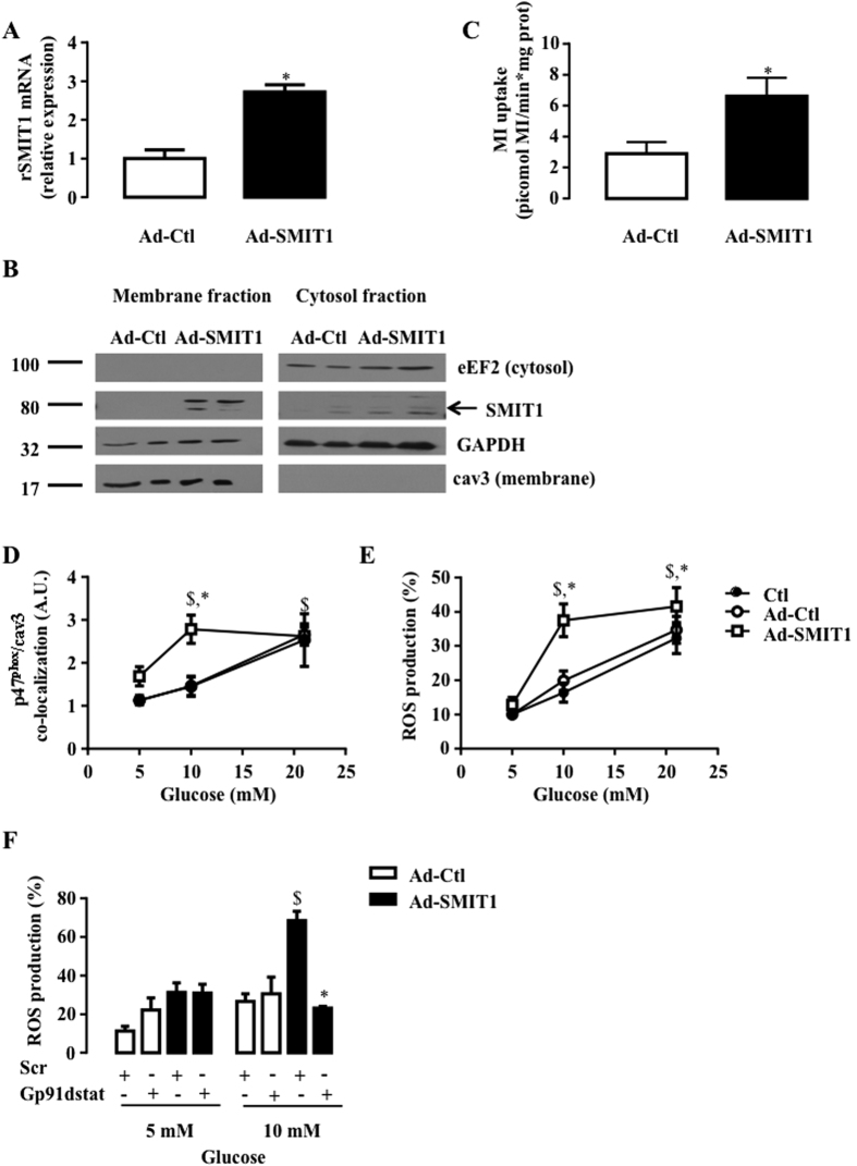 Impact of SMIT1 overexpression on NOX2 activation and ROS production. Adult rat cardiomyocytes were infected with adenoviruses (24 h, 200 MOI) expressing SMIT1 (Ad-SMIT1) or β-galactosidase (Ad-Ctl). ( A ) SMIT1 mRNA level measured by qRT-PCR (n = 3). Data were normalized to HPRT1 and expressed as relative expression vs Ad-Ctl. ( B ) SMIT1 protein expression in plasma membrane fractions obtained after cellular fractionation. Full-length blots are presented in Supplementary Figure 6 . ( C ) Quantification of picomoles myo-[3 H]inositol uptake per min and mg of proteins (n = 4). ( D ) p47phox translocation close to cav3 (n = 6) and ( E ) ROS production (n = 7) in response to increased glucose concentration (5–10 and 21 mM of glucose). ( F ) Gp91dstat and scrambled peptide were added 15 min prior to glucose (5 or 10 mM glucose). ROS production was quantified 2 h after change in glucose concentration (n = 3). Data are means ± SEM. Statistical analysis was by ( A–C ) Student's t-test or ( D,E,F ) two-way ANOVA. $ Indicates values statistically different from LG, p ≤ 0.05. *Indicates values statistically different from ( A–E ) Ad-Ctl, and ( F ) scr, p ≤ 0.05.