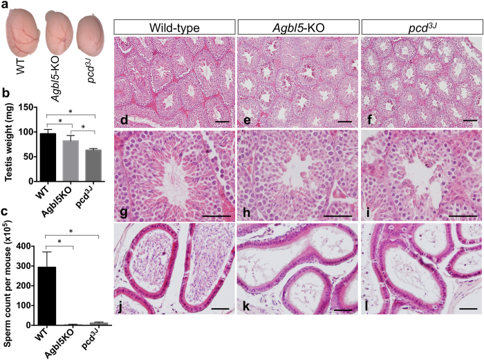 Defective spermatogenesis in Agbl5 -KO mice. ( a ) Testes of 3-month old Agbl5 -KO and pcd 3J −/− mice are smaller than those of age-matched wild-type mice. ( b ) Comparison of the weight of testes from 3-month old wild-type (WT, n = 8), Agbl5 -KO (n = 8), and pcd 3J (n = 4) mice. Although testes from both Agbl5- KO and pcd 3J mice weigh significantly less ( p