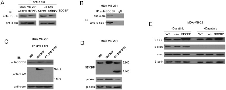 Interaction between SDCBP and c-src in TNBC cell lines. (A) The c-src-specific antibody was used to immunoprecipitate from the cell lyastes of MDA-MB-231-SDCBP shRNA or BT-549 SDCBP shRNA and from the cell lysates of their corresponding control shRNA cells; the precipitated product were then analyzed using the SDCBP-specific antibody. (B) The SDCBP-specific antibody (or IgG as a control) was used to immunoprecipitate from MDA-MB-231 cell lysates; samples were then analyzed using the specific c-src antibody. (C) The c-src-specific antibody was used to immunoprecipitate wild-type SDCBP and SDCBP lacking the PDZ domains from their corresponding stably transfected MDA-MB-231 cell lysates. The precipitated products were then analyzed using the SDCBP-specific and FLAG antibodies. (D) Immunoblotting was used to evaluate the effects of SDCBP or its mutant protein lacking the PDZ domains overexpression on the tyrosine phosphorylation of c-src at residue 419. (E) Immunoblotting was used to evaluate the effects of SDCBP overexpression on c-src and p-c-src-Y419 levels in the presence or absence of 100 nM dasatinib treatment. WT represents wild-type MDA-MB-231 cells.