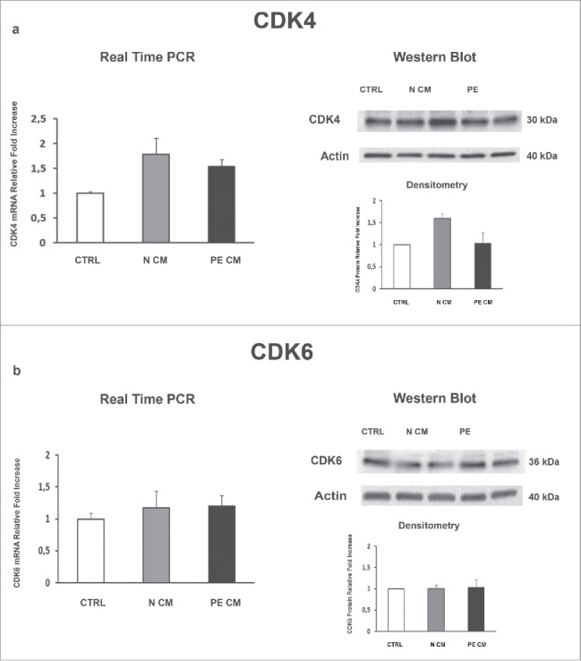 CDK4and CDK6 gene and protein expression levels in physiological placental villous explants treated with culture media conditioned by normal or PE-PDMSC. (A) CDK4 <t>mRNA</t> (left panels) and protein (right panels) expression levels in physiological villous explants treated with unconditioned media (CTRL, n = 16 explants) or media conditioned by normal (N CM, n = 16 explants) and preeclamptic (PE CM, n = 16 explants) PDMSCs as assessed by Real Time <t>PCR</t> and Western Blot analysis. B) CDK6 mRNA (left panels) and protein (right panels) expression levels in physiological villous explants treated with unconditioned media (CTRL, n = 16 explants) or media conditioned by normal (N CM, n = 16 explants) and preeclamptic (PE CM, n = 16 explants) PDMSCs as assessed by Real Time PCR and Western Blot analysis. Statistical significance (*) has been considered as p