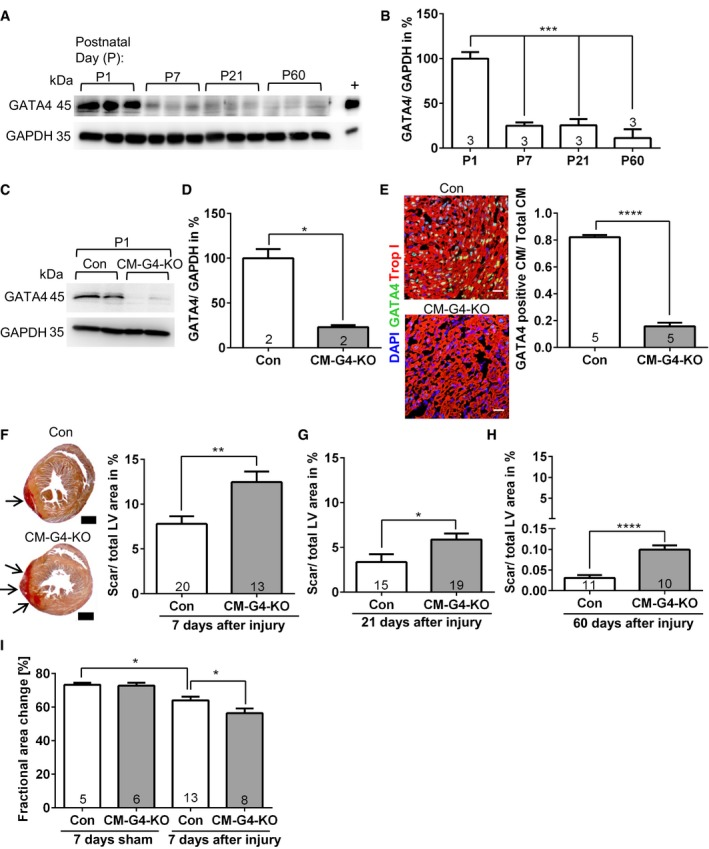 Cardiac GATA 4 becomes downregulated within the first postnatal week and is necessary for myocardial regeneration Cardiac GATA4 protein abundance analyzed by immunoblotting. GAPDH was the loading control. + denotes positive control for GATA4 from cardiomyocytes infected with a GATA4‐overexpressing adenovirus. Densitometric quantification of the immunoblot shown in (A); *** P = 0.0003 for P1 vs. P7 and P1 vs. P21; *** P