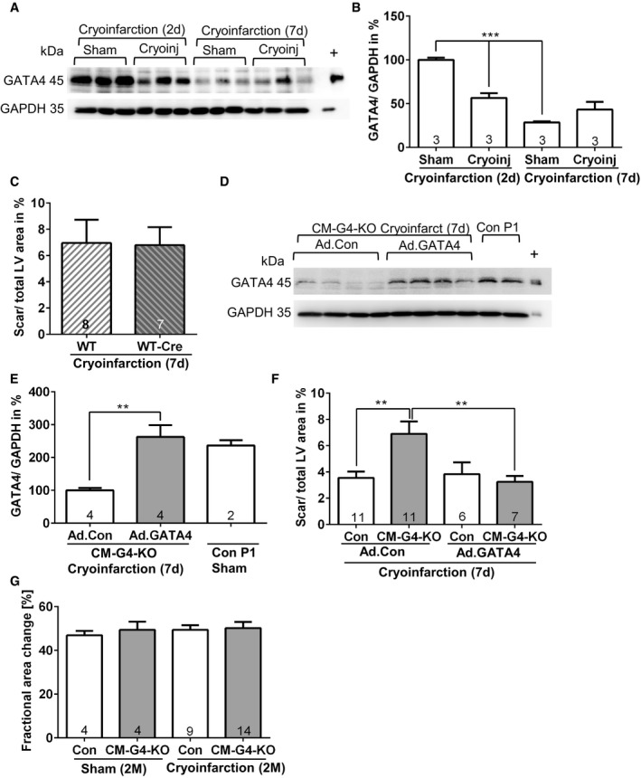 GATA 4 is necessary for cardiac regeneration after cryoinjury Cardiac GATA4 protein abundance analyzed by immunoblotting in mice treated as indicated. + denotes positive control for GATA4 from cardiomyocytes infected with a GATA4‐overexpressing adenovirus. Densitometric quantification of the immunoblot shown in (A); *** P = 0.0008 for sham vs. cryoinfarction and *** P