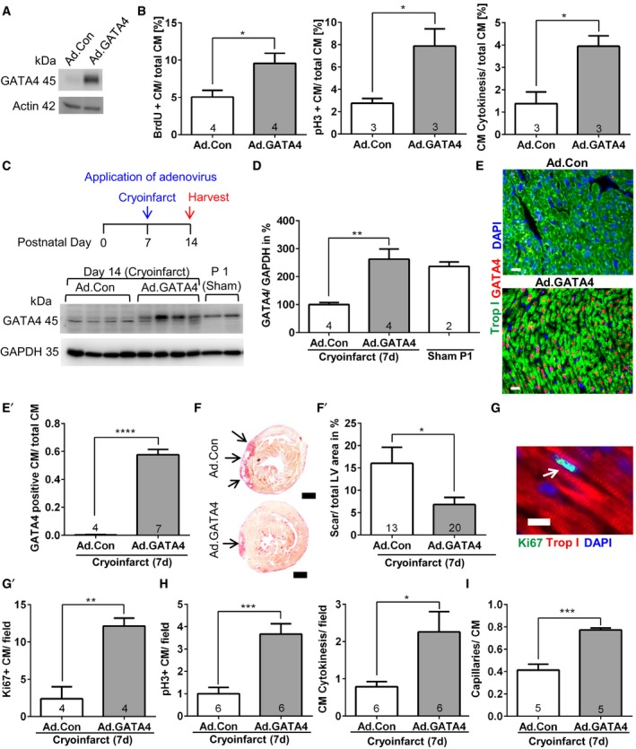 GATA 4 overexpression triggers cardiomyocyte proliferation in vitro and improves myocardial regeneration at P7 in vivo Representative immunoblot for GATA4 and GAPDH from neonatal cardiomyocytes treated with control (Ad.Con) or GATA4‐expressing adenovirus (Ad.GATA4). Quantification of BrdU incorporation, pH3 labeling, and cytokinesis in neonatal cardiomyocytes treated as shown. * P = 0.0272 for BrdU incorporation, * P = 0.0329 for pH3 labeling, * P = 0.0217 for cytokinesis. Immunoblot for GATA4 and GAPDH of mouse hearts treated as shown in the experimental timescale above. A quantification of the immunoblot from (C) is shown; ** P = 0.0062. Representative pictures of myocardial sections immunostained for the indicated proteins from mice 7 days after cryoinjury and treatment with Ad.Con or Ad.GATA4. The quantification of cardiomyocytes (CM) staining positive for GATA4 vs. total cardiomyocytes is shown as bar graph (E′). Scale bars: 20 μm. **** P