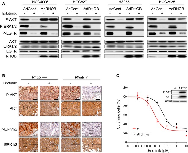 RHOB induces resistance to erlotinib through the AKT pathway HCC4006, HCC827, HCC2935, and H3255 cells were transduced with control (AdCont) or RHOB‐overexpressing (AdRHOB) adenoviruses and treated for 4 h with erlotinib at concentrations corresponding to the respective IC 50 values determined for each control cell line. The phosphorylation status of AKT, ERK1/2, and EGFR was assessed by Western blotting and normalized according to total protein levels. RHOB overexpression was also monitored by Western blotting. Representative immunostaining of phospho‐AKT (Ser473) and phospho‐ERK1/2 and their total protein amounts in lung tumors from EGFR L858R / Rhob − / − or EGFR L858R / Rhob +/+ mice treated or not with erlotinib (12.5 mg/kg/day) for 4 days. The remaining hyperplastic areas were selected in erlotinib‐treated mice to efficiently characterize the effect of erlotinib on ERK and AKT pathways in both Rhob genotypes. Scale bars: 100 μm. HCC4006 cells were transfected with a plasmid coding for a constitutively active AKT mutant (AKT myr , myristoylated) or an empty vector (ø) and treated for 72 h with increasing concentrations of erlotinib. The surviving cell fraction was determined by an MTS assay, and AKT overexpression and phosphorylation at Ser473 were assessed by Western blotting. Data are representative of at least three independent experiments. Data are expressed as mean ± SEM from three independent experiments. Source data are available online for this figure.