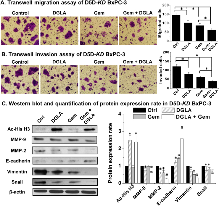 D5D- KD and DGLA treatment enhanced efficacy of <t>gemcitabine</t> on cell migration and invasion in BxPC-3 cells. A) Transwell migration assay of D5D- KD BxPC-3 cells upon treatment of DGLA (100 µM), gemcitabine (0.1 µM) alone or gemcitabine+DGLA. The D5D- KD cells without fatty acid and drug treatment were used as controls; B) Transwell invasion assay of D5D- KD BxPC-3 cells upon treatment of DGLA (100 µM), gemcitabine (0.1 µM) alone or gemcitabine+DGLA. The D5D- KD cells without fatty acid and drug treatment were used as controls; C) Western blot and protein expression level of acetyl histone H3, MMP-2, MMP-9, E-cadherin, vimentin and snail from D5D- KD BxPC-3 cells treated with vehicle (control), DGLA (100 μM), gemcitabine (0.1 μM) or gemcitabine+DGLA. Protein expression rate was normalized using β-actin as loading control (*: significant difference vs. control with p