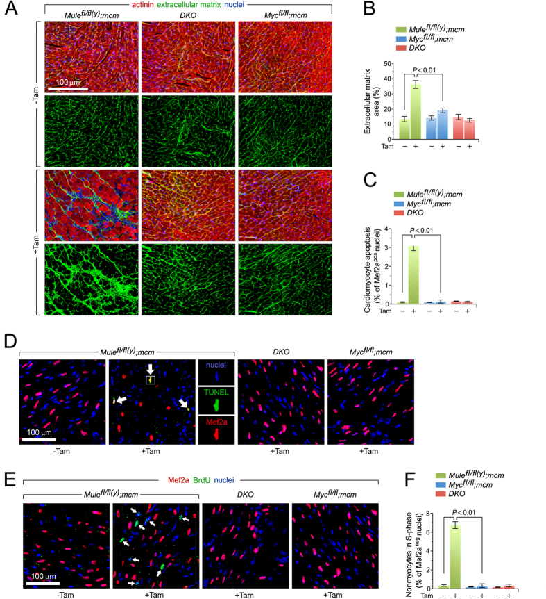 Mule-deficiency induces cardiomyocyte apoptosis and structural remodeling of the ventricular wall. ( A ) Analysis of cardiac fibrosis by immunofluorescence microscopy employing wheat germ agglutinin (WGA) staining (green) of collagen deposition in the extracellular matrix, cardiomyocyte-specific anti-actinin (red), and Dapi (blue) to visualize nuclear DNA. ( B ) Quantification of extracellular matrix area indicative of LV fibrosis shown in ( B ). n = 4. ( C ) Acute genetic ablation of Mule triggers cardiomyocyte apoptosis which is abrogated by co- deletion of Mule and Myc in DKO mice. n = 4. ( D ) Analysis of apoptosis in LV cardiomyocytes (white arrows) by immunofluorescence microscopy and TUNEL assays. Hearts were harvested at 8 d post-Tam. Mice were 12 weeks old at the time of analysis. Red, cardiomyocyte-specific nuclear marker, anti-Mef2a. Green, TUNEL. Blue, DAPI stain of nuclear genomic DNA. TUNEL, terminal deoxynucleotidyl transferase- mediated dUTP nick-end-labeling. ( E ) BrdU, an indicator for DNA synthesis was injected intraperitoneally at 7 d post-Tam. Animals were sacrificed 18 hours later. Quantitative analysis of cardiomyocytes in S phase was performed by immunofluorescence microscopy of LV cardiac sections employing anti-BrdU (green) and anti-Mef2a (red) antibodies. White arrows denote BrdU-positive and Mef2a-negative non-cardiomyocytes. Blue, nuclei). BrdU, 5-Bromo-2′-deoxyuridine. ( F ) Genetic ablation of Mule fails to induce cell cycle entry and DNA synthesis in adult cardiomyocytes. n = 4. Data are means ± s.e.m.