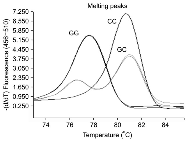 Genotyping results for the rs1333049 using the melting temperature shift polymerase chain reaction.