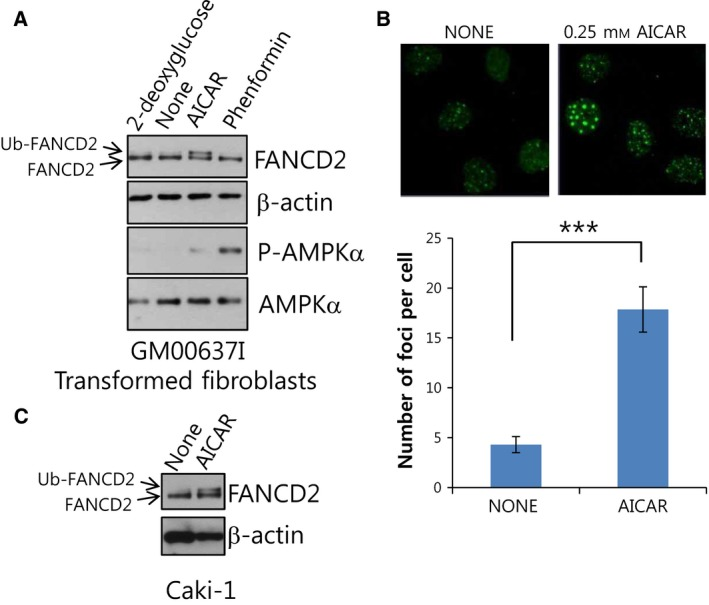 AMPK ‐activating AICAR treatment activates FANCD 2, a pivotal molecule of Fanconi anemia DNA damage signaling pathway. (A) AICAR treatment induces FANCD 2 monoubiquitination in transformed normal fibroblasts ( GM 00637I). GM 00637I cells were treated with 1 m m 2‐deoxyglucose, 0.25 mM AICAR , or 1 m m phenformin for 24 h. Lysates were subjected to western blotting with anti‐ FANCD 2, phospho‐ AMPK α1 (T172), and AMPK α and β‐actin. In FANCD 2 blots, the position of monoubiquitinated FANCD 2 (Ub‐ FANCD 2) is indicated by an arrow. (B) AICAR treatment induces formation of FANCD 2 nuclear foci in GM 00637I fibroblasts. Cells grown on coverslips in 12‐well plates were treated with 0.25 m m AICAR for 24 h. Cells were immunostained with FANCD 2 antibody and Alexa 488‐conjugated anti‐rabbit secondary antibody. FANCD 2 foci were visualized by confocal microscopy. Representative images are shown at the top. The number of foci per cell was counted and plotted for ≥ 20 cells (bottom panel). The values represent the mean ± SEM (Student's t ‐test, *** P