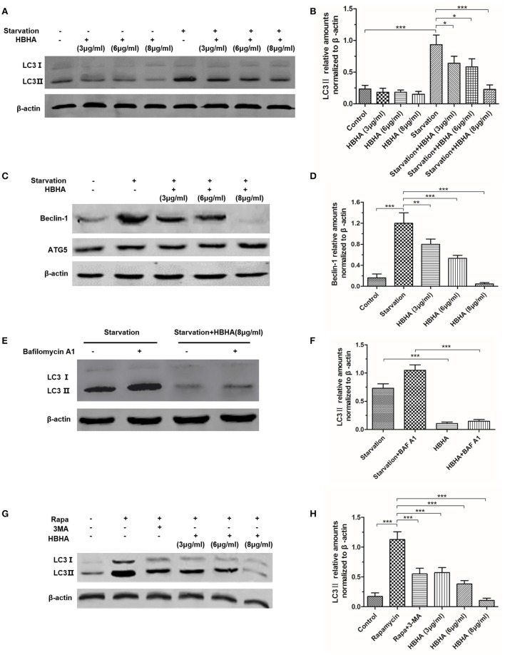Heparin-binding hemagglutinin (HBHA) inhibited the expression of LC3 and Beclin-1 in A549 cells. (A–D) A549 cells were starved for 1 h, and HBHA proteins of different concentrations were subsequently added to the cells for 90 min. LC3 (A) and ATG5/Beclin-1 (C) expression was detected by Western blot. The intensities of LC3II (B) and Beclin-1 (D) bands were normalized to the intensity of β-actin. ( * P