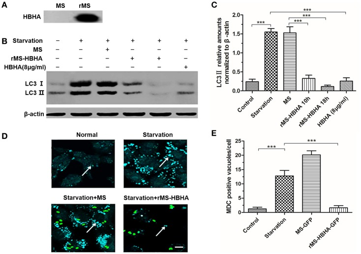 Recombinant Mycobacterium smegmatis ( MS ) expressing HBHA ( rMS-HBHA ) inhibited autophagy among starved A549 cells. (A) Total proteins of MC 2 155 and rMS-HBHA were extracted, and Western blot was carried out to detect HBHA using anti-HBHA antibody. (B) A549 cells were infected with the wild-type strain MC 2 155 or rMS-HBHA at the multiplicity of infection (MOI) of 10:1 for indicated time or treated with HBHA (8 μg/ml) for 90 min. The expression levels of LC3 were detected by Western blot. (C) The intensities of LC3II bands were normalized to the intensity of β-actin. ( *** P