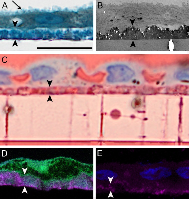 Lipids and calcium localize to sub-RPE deposits. ( A ) Primary porcine RPE cells cultured for 12.0 weeks are confluent. They exhibit a brush-border apically ( arrow ) and overlie a diffuse deposit ( arrowheads ). One-micrometer epoxy section, toluidine blue stain. ( B ) Deposit is a continuous and electron dense monolayer without evidence of thickened basal lamina; transmission electron microscopy. ( C ) Deposits contain neutral lipid, as do pores crossing the Transwell insert. Oil red O stain. ( D ) Cells form a continuous layer over HAP ( magenta ) positive deposits. Cryo-section; cells, autofluorescence; HAP deposit, bone-tag680RD (Li-Cor) fluorescent stain. ( E ) Deposits under nucleated cells ( blue ) contain HAP ( magenta ). Cryo-section, bone-tag680RD for HAP and 4′,6-diamidino-2-phenylindole (DAPI) for nucleic acids ( blue ). Scale bar denotes 20 μm and applies to all panels. Images in A and C were matched in magnification to images obtained with higher-resolution imaging technologies in B , D , and E and thus exhibit empty magnification.